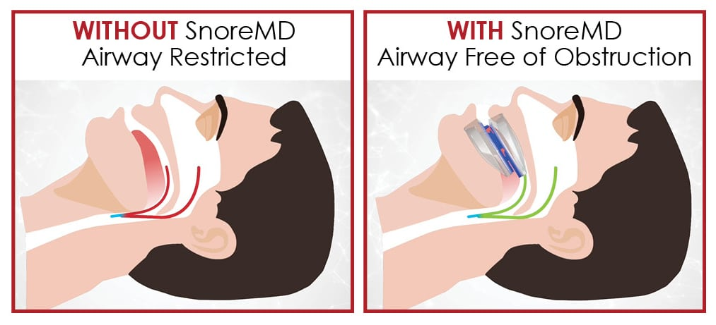 How SnoreMD frees your airway - Diagram